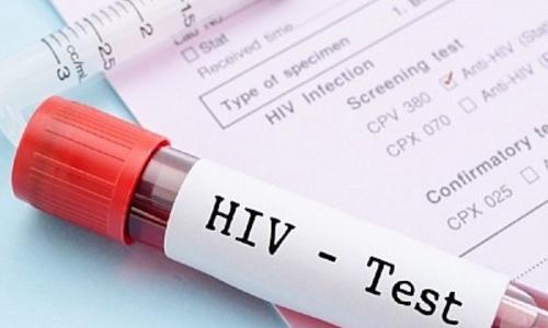 Более тысячи керчан ВИЧ-инфицированы